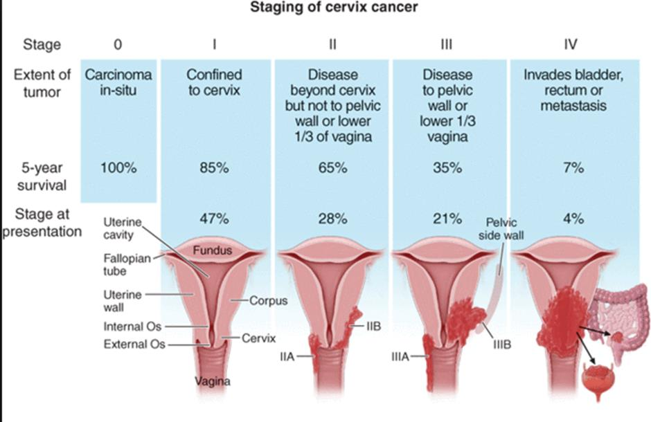 Difference between cervical and vaginal cancer
