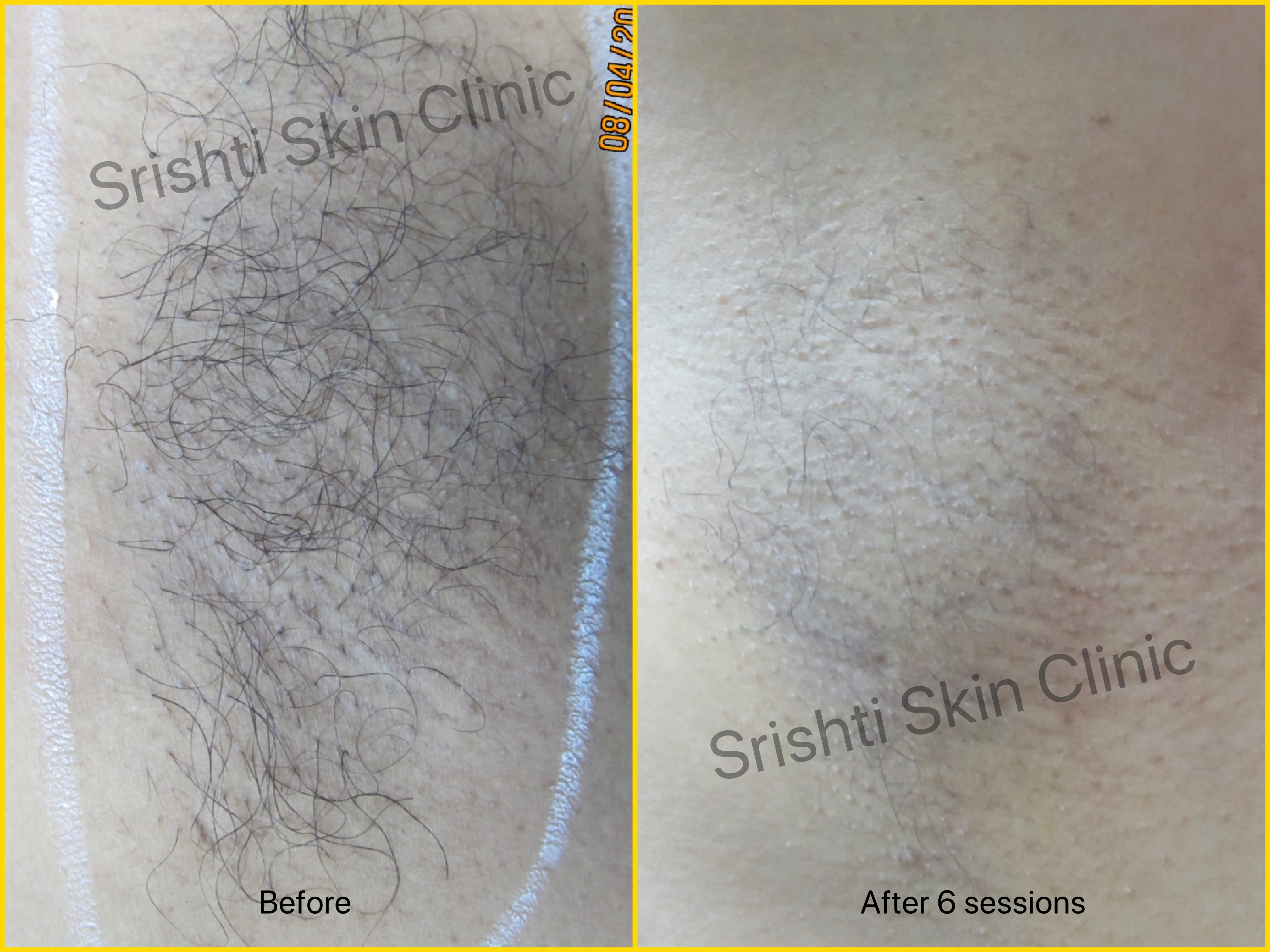 laser hair removal in thane