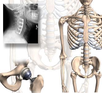 Orthopedic Hospitals