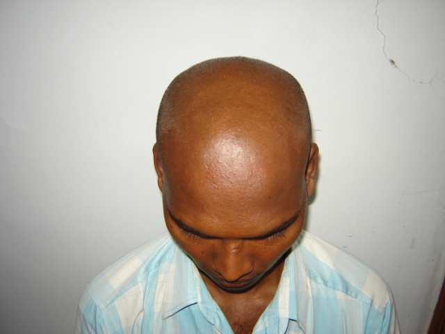 Dr.Rajguru Haircare & Research Clinic_image1