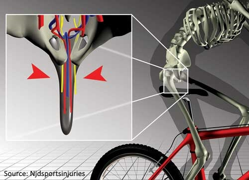 Common Issues with Bicycle Saddles-1