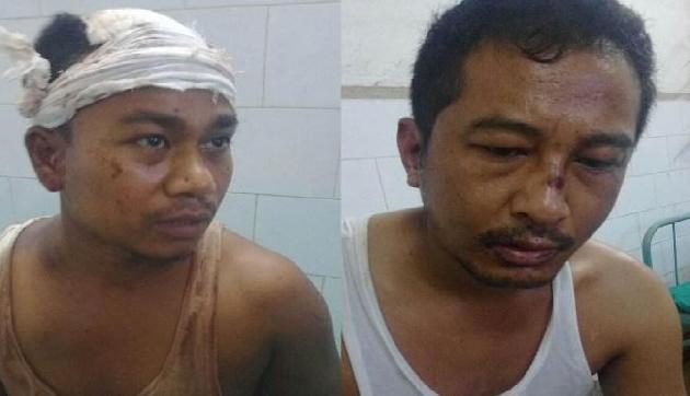 असम: एमपी ज्वैलर्स के शो रूम में करोड़ों की डकैती के मामले में 3 और गिरफ्तार