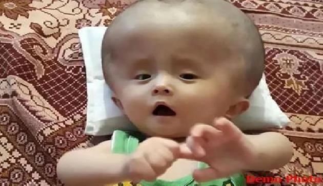 लगातार बढ़ रहा है इस नन्ही बच्ची का सर, जानिए क्यों