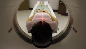 सिर दर्द से परेशान थी लड़की, हुआ CT स्कैन तो उड़ गए डॉक्टरों के होश