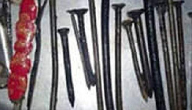 इस शख्स को थी लोहा खाने की आदत, डॉक्टर ने पेट ने निकाले 116 कीलें, छर्रे और तार