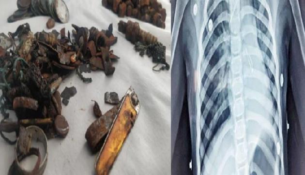 लोहा खाने का अजीब शौक, Doctor ने पेट से निकालीं कीलें समेत 452 चीजें