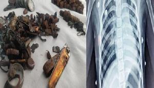 लोहा खाने का अजीब शौक, डॉक्टरों ने पेट से निकालीं कीलों समेत 452 चीजें