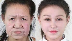 15 साल की उम्र में दिखती थी 60 साल जैसी, अब इस तरह मिल गया नया चेहरा