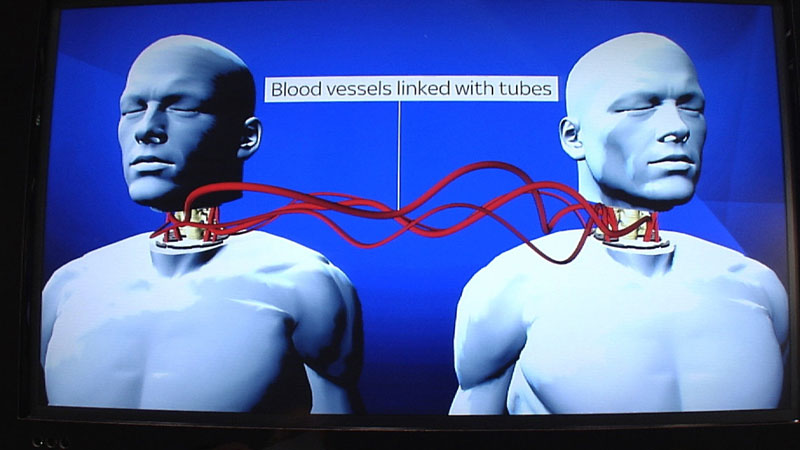 Medical Miracle: World's first human head transplant successful