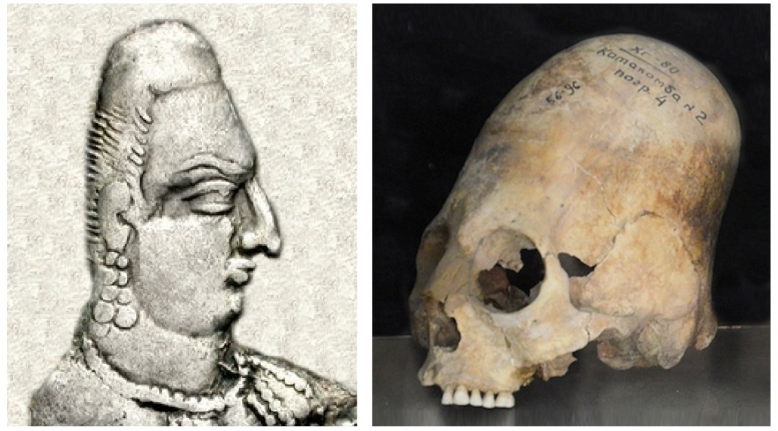 Portrait of Alchon king (circa 450 CE) and, an an elongated skull excavated in Samarkand (dated 600-800 CE)