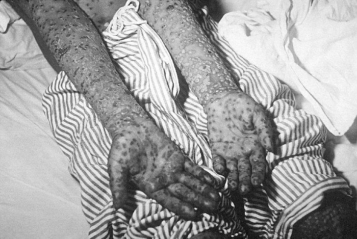 Smallpox infection