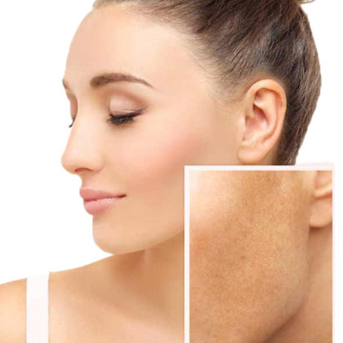 Skin Hyperpigmentation Treatment  image