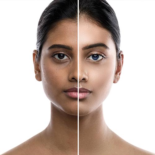 Skin Whitening  image