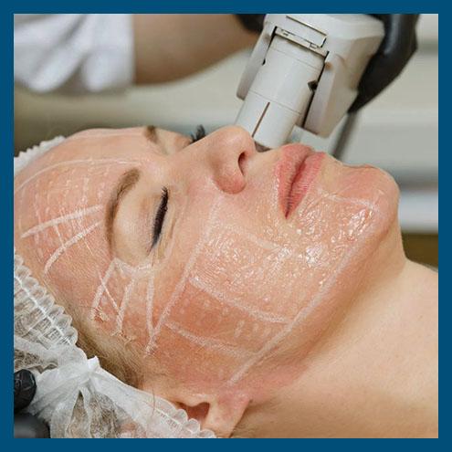 HIFU Skin Rejuvenation Facelift Treatment  image