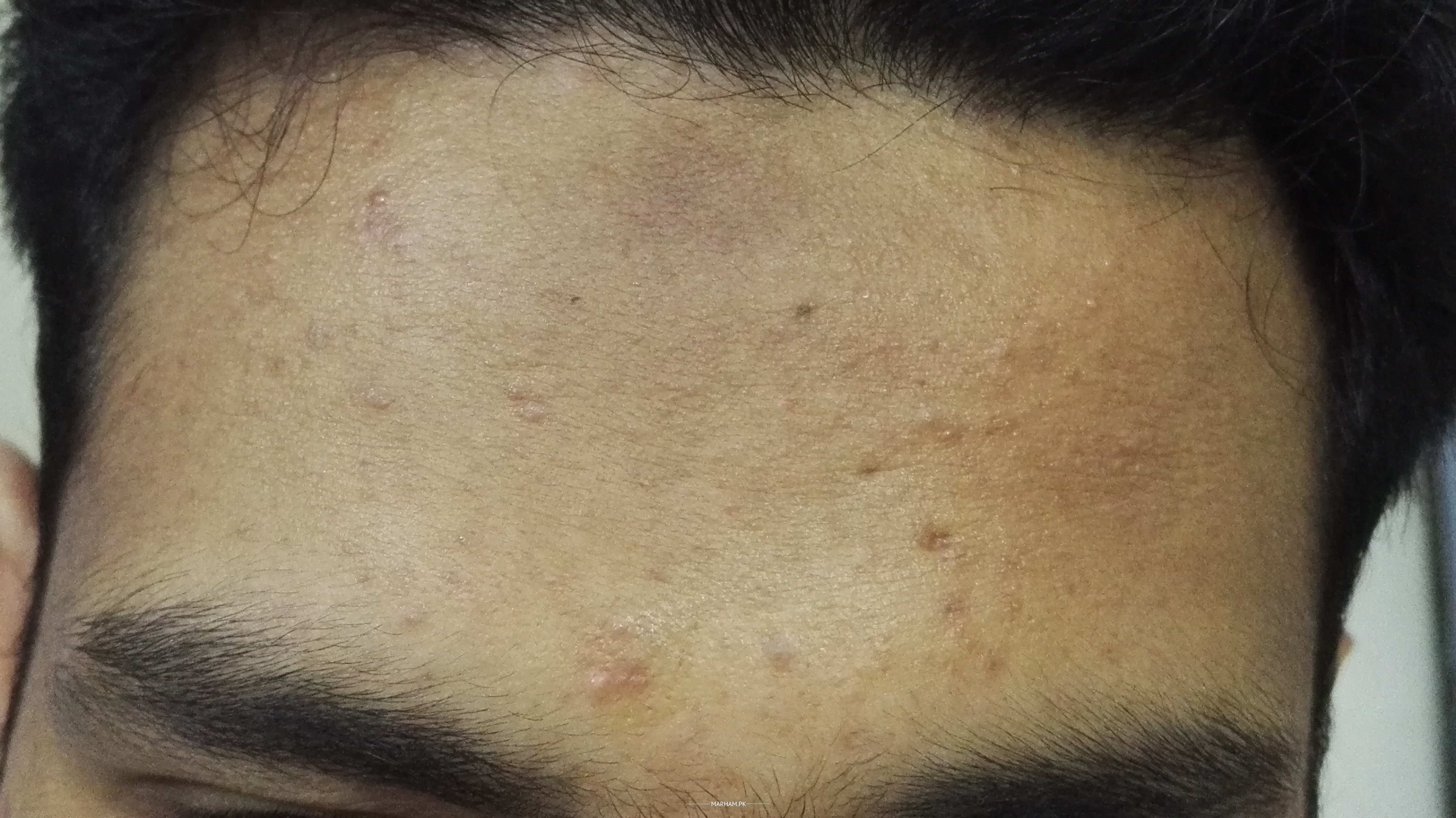 Acne And Scar Since The Age Of 16 I Am H Ask A Doctor Online