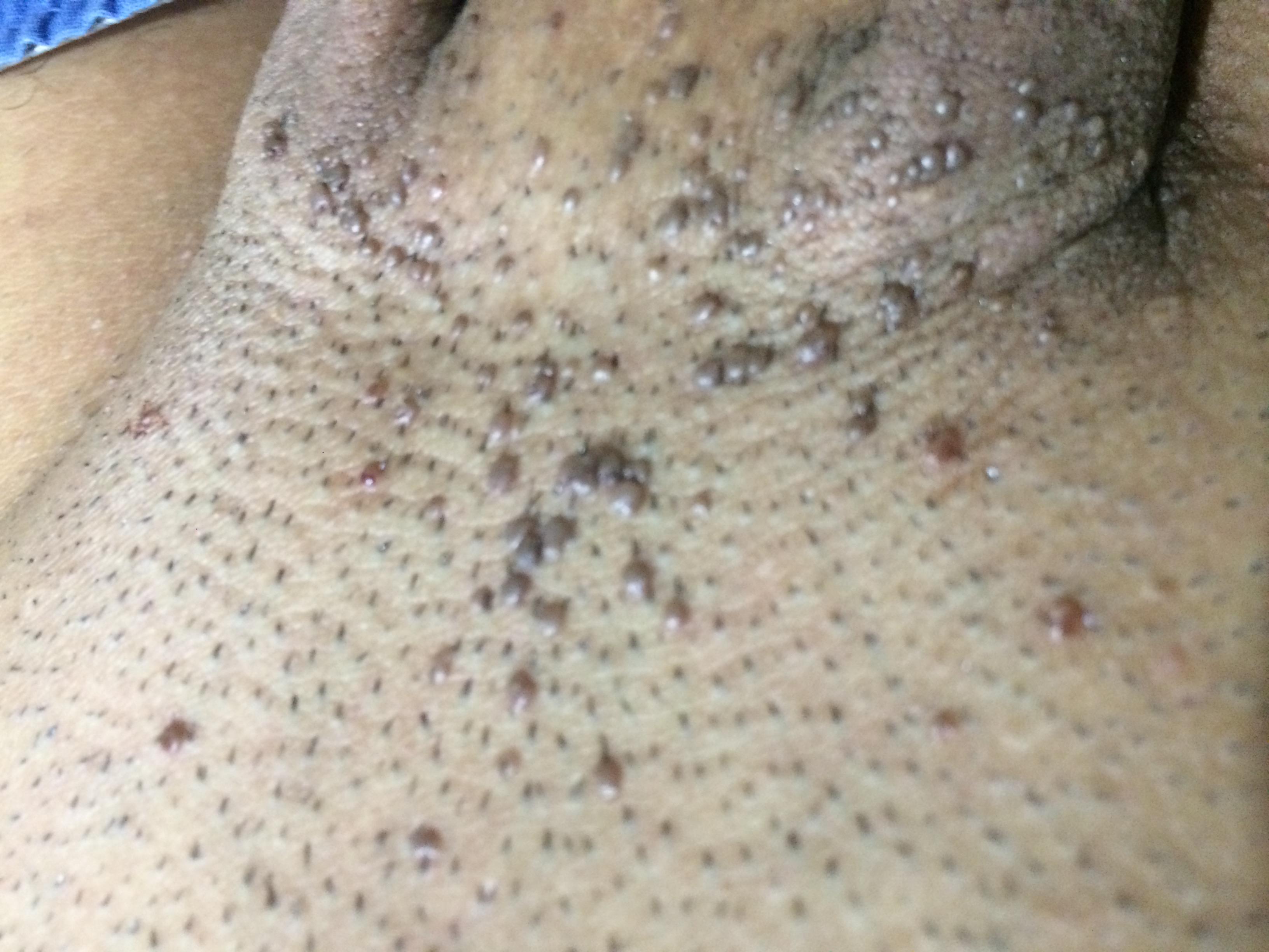Raised mole on penis