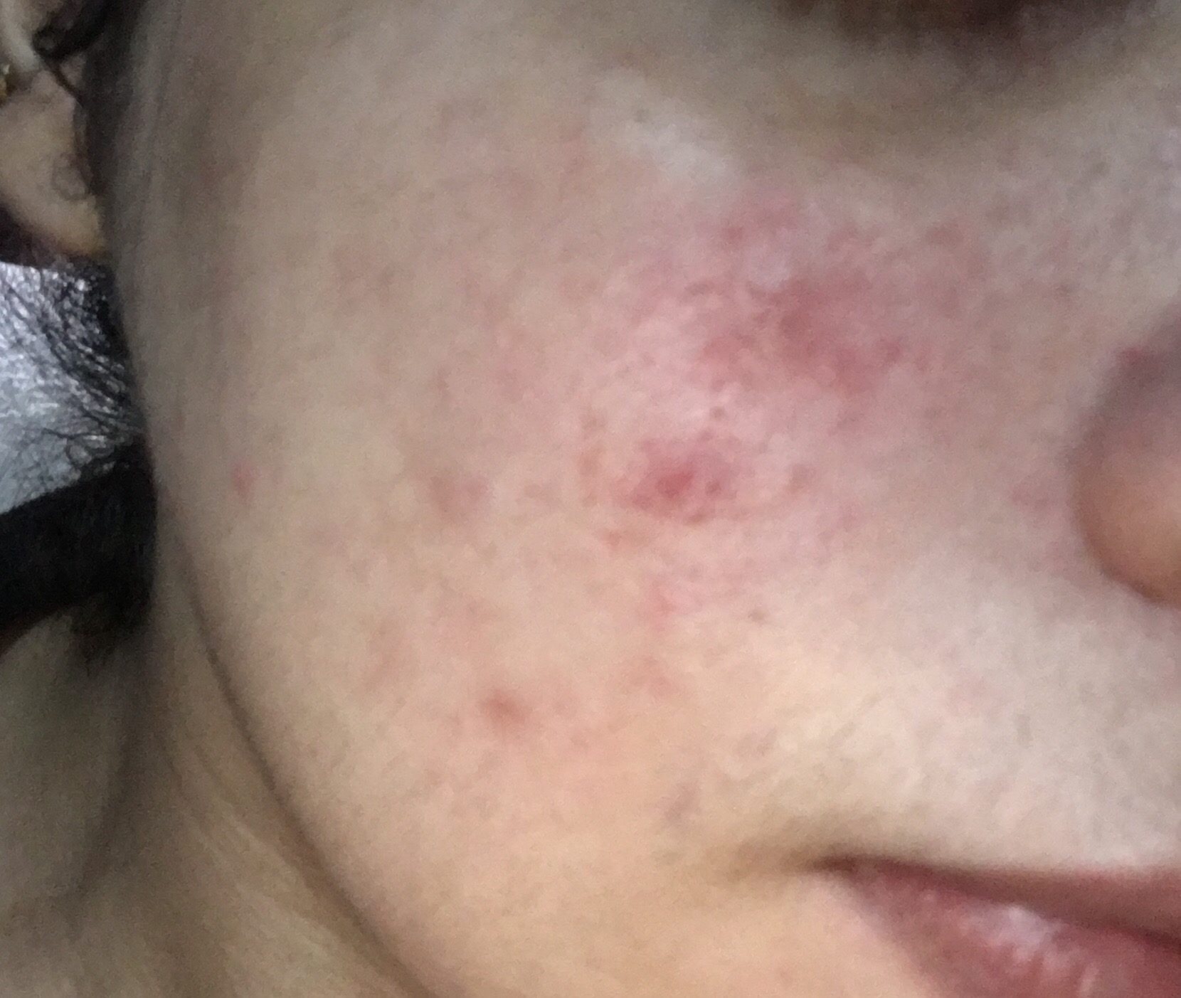 Acne And Redness Last Year I Got The Trea Ask A Doctor Online