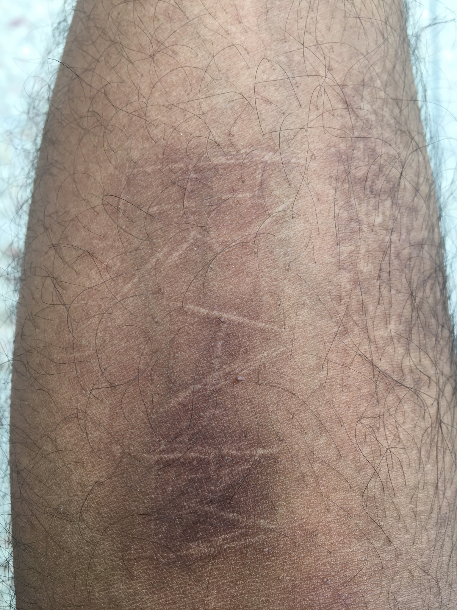 Self Harm Scar I Have Cut Marks Of Blade Ask A Doctor Online