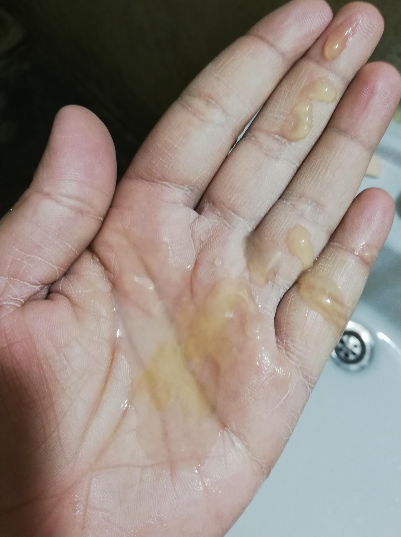 Ask a Urologist Online for Yellow Sperm
