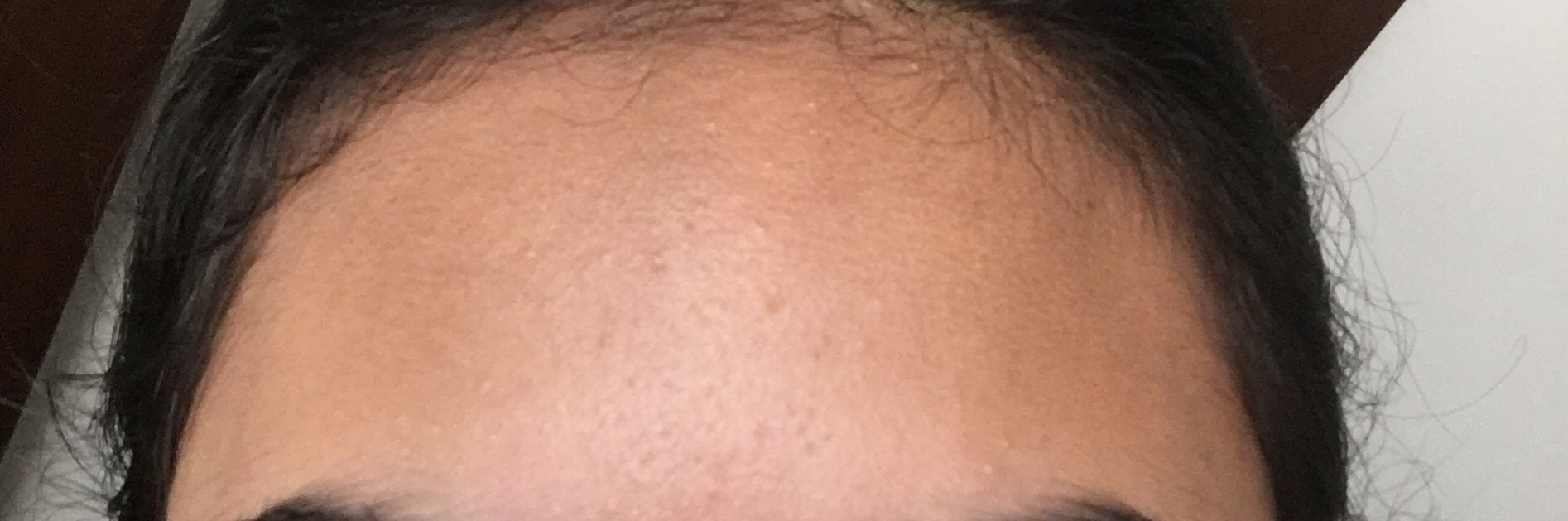 Fungal Acne Malessezia Folliculitis Pity Ask A Doctor Online
