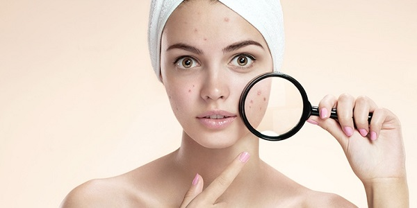 9 Home Remedies For Dark Spots On Your Legs, Face & Skin ...