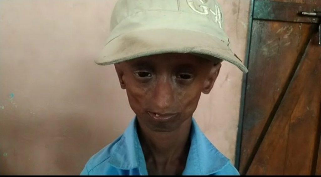 लाइलाज बीमारी से जिंदगी की जंग लड़ रहे बालक बनेगा कलेक्टर, जताई थी IAS अफसर बनने की इच्छा