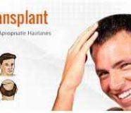 Hair transplant clinics bangalore-Dr Venkat Charmalaya Center for Advanced Dermatology