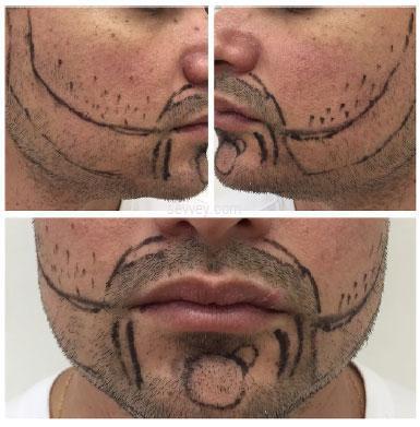 beard-growth-tips beard-growth-oil