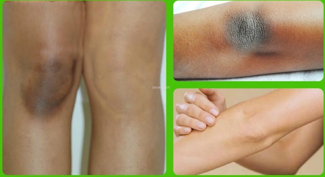 whiten-knees whiten-elbows