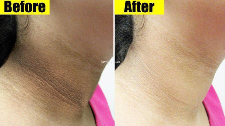 neck under-arm hair