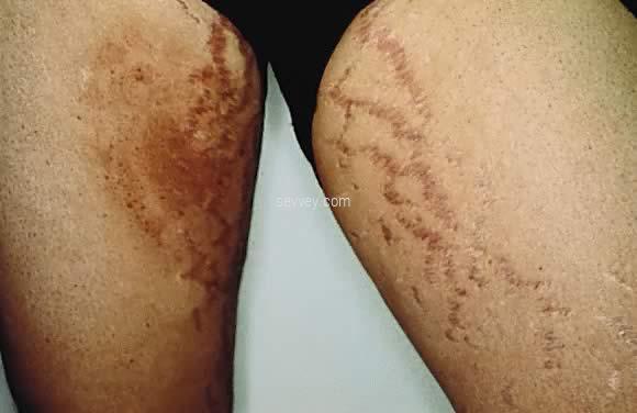 black inner inner-thighs